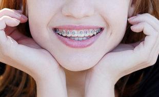 orthodontics-header